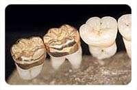 Curso de protesis dental